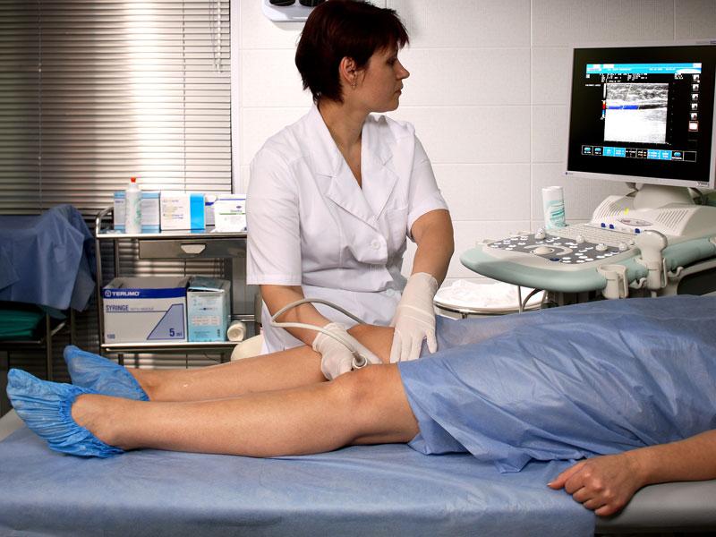 Консервативное лечение варикозного расширения вен