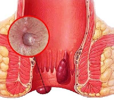 лечение чесноком при геморрое