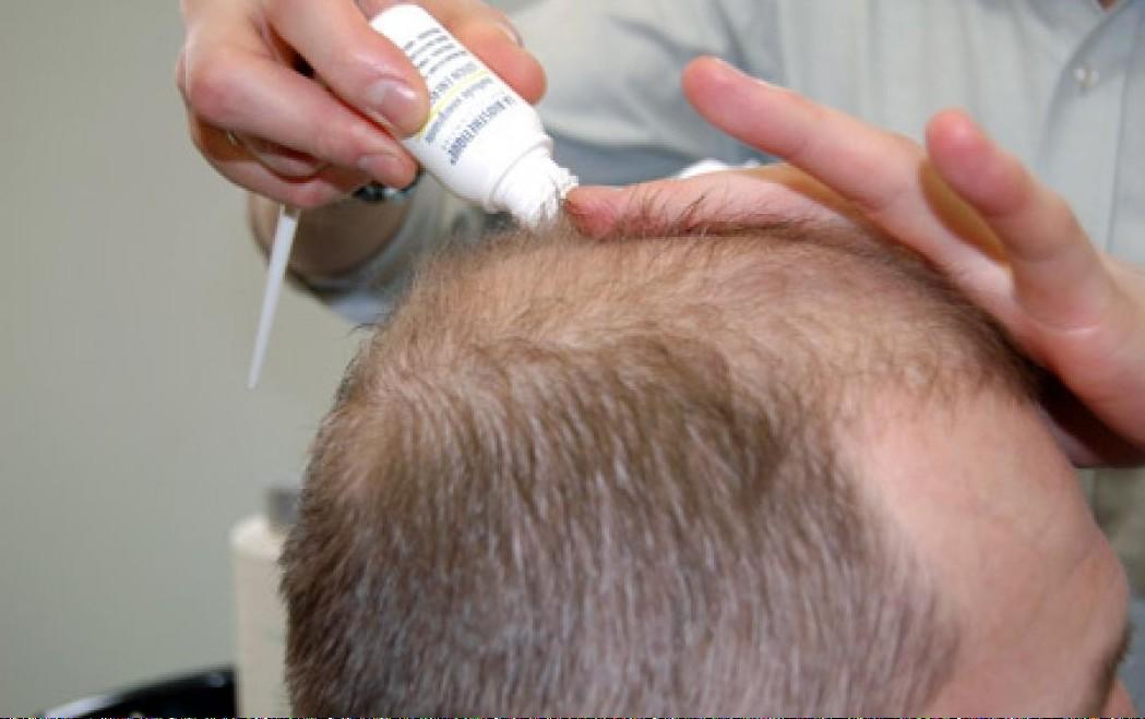 Миндальное масло для волос от выпадения отзывы